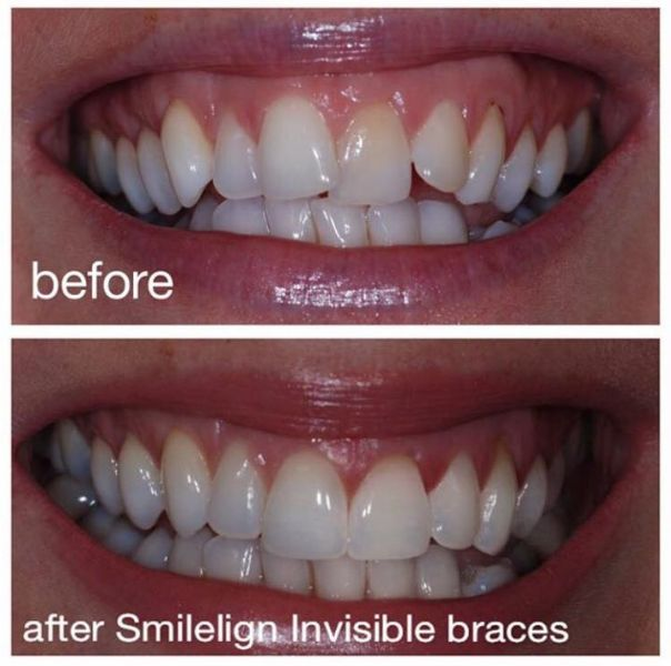 Smilelign Invisible Braces Belfast