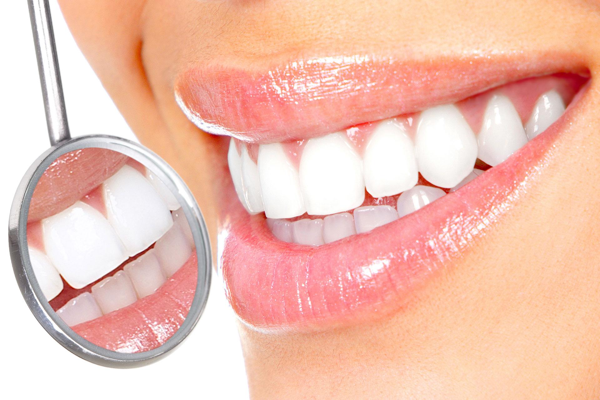 Teeth Whitening Belfast 1