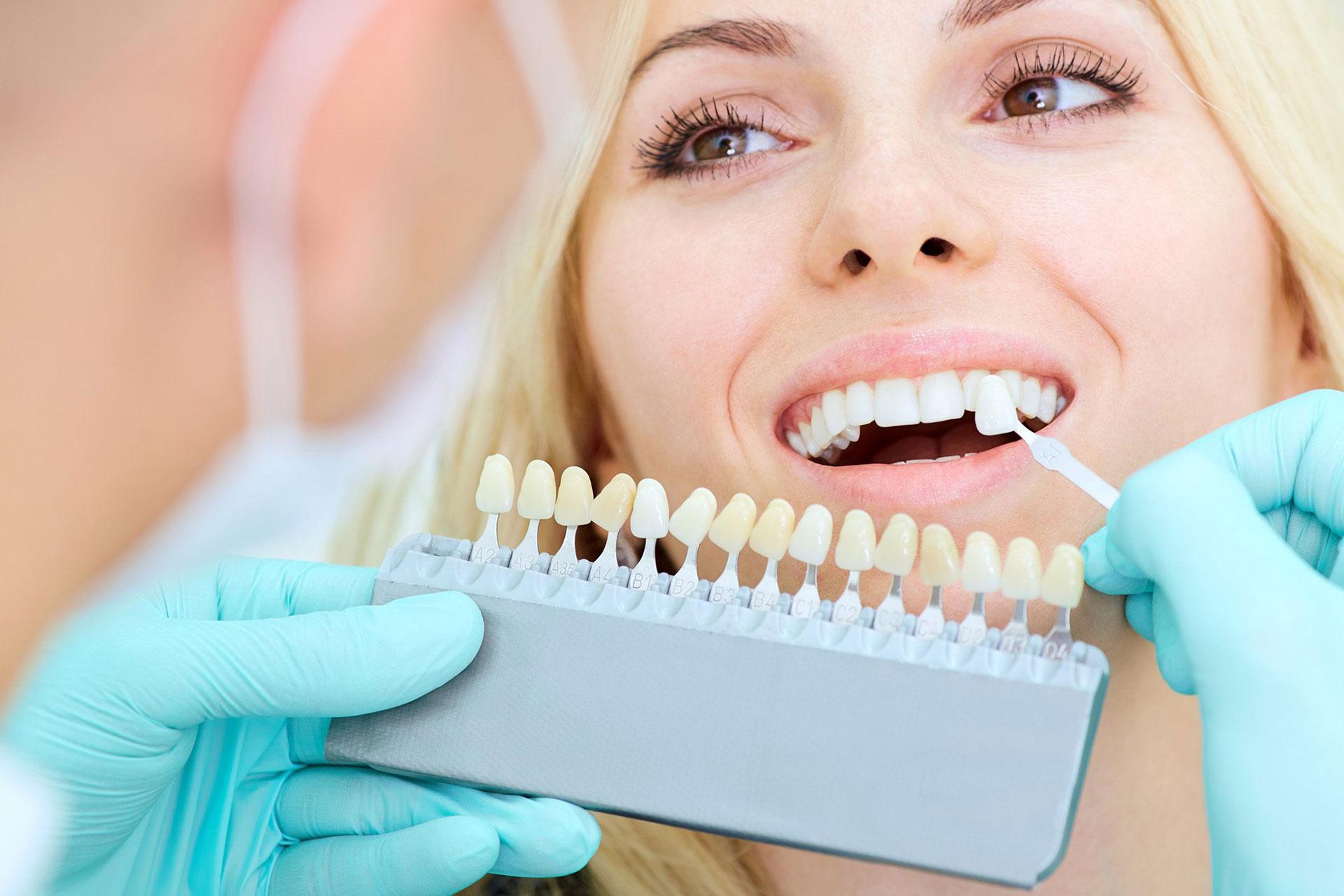 Teeth Whitening Belfast 2