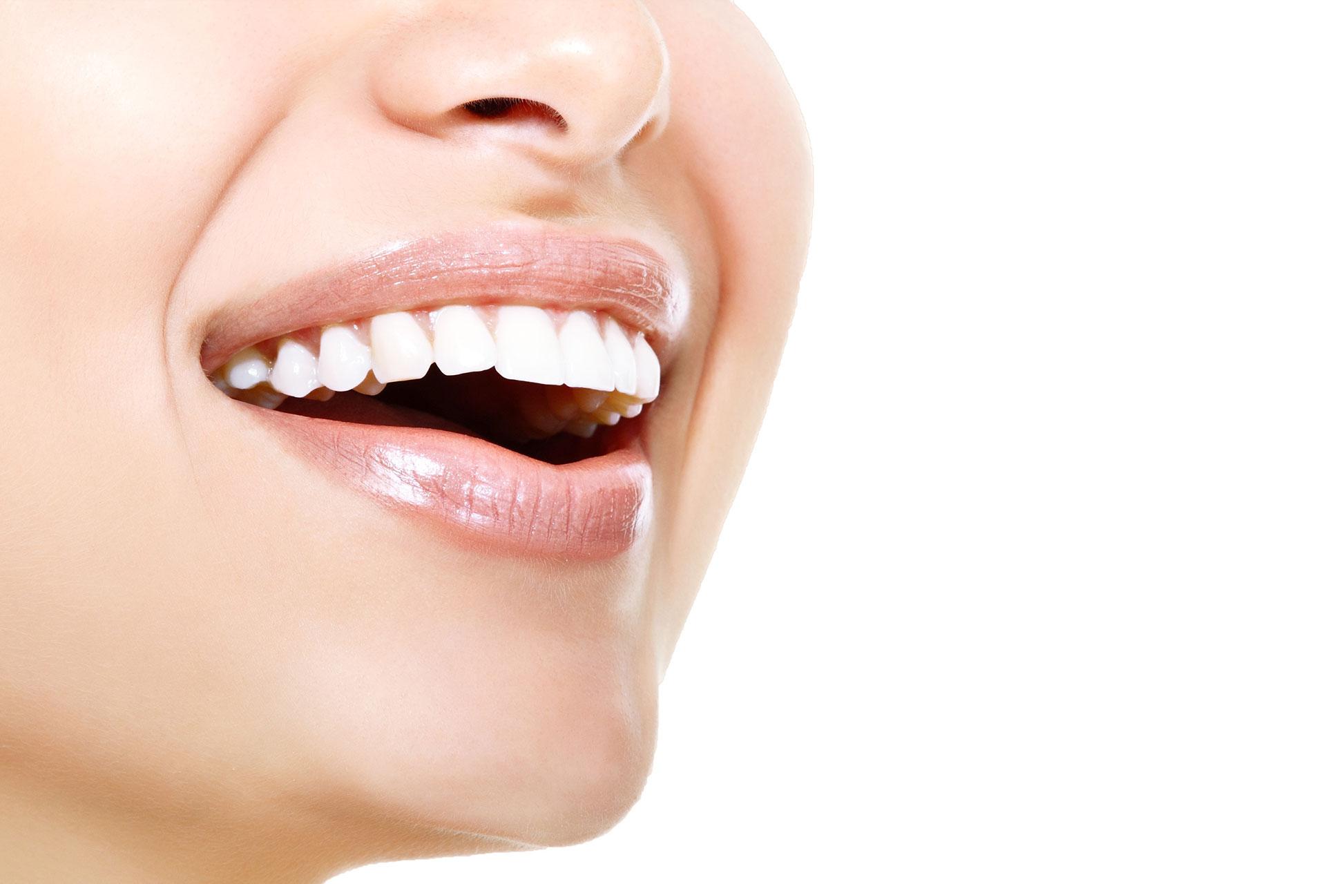 Teeth Whitening Belfast 3