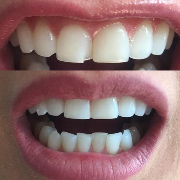 Tooth Bonding Belfast