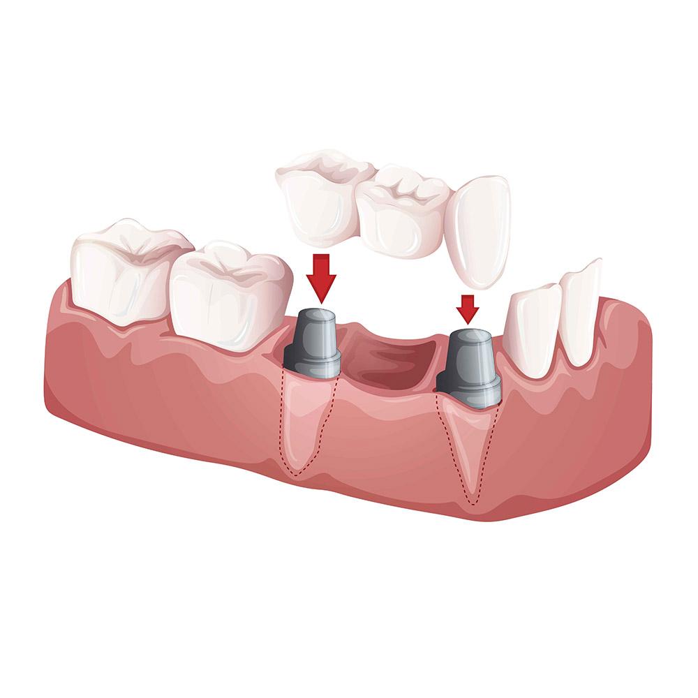 Dental Bridges Belfast