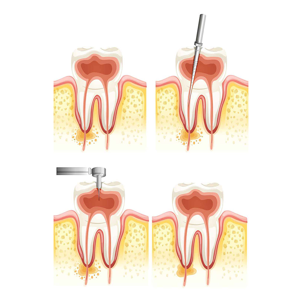 Root Canal Belfast