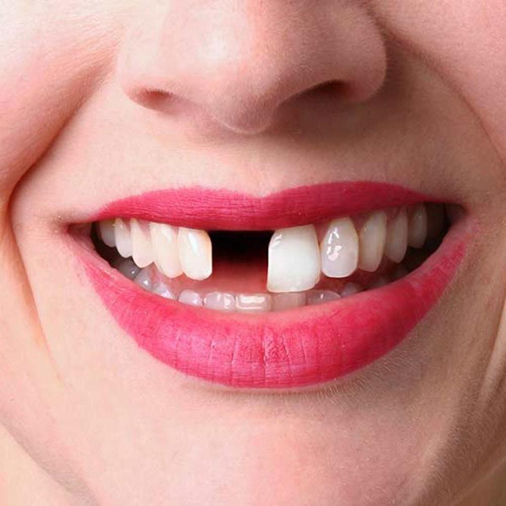 Tooth Extraction Belfast