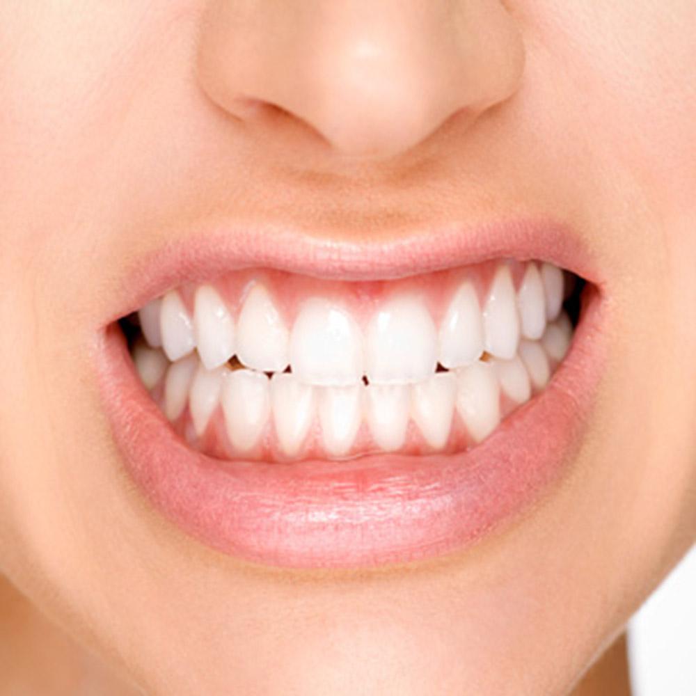 Tooth Grinding Belfast